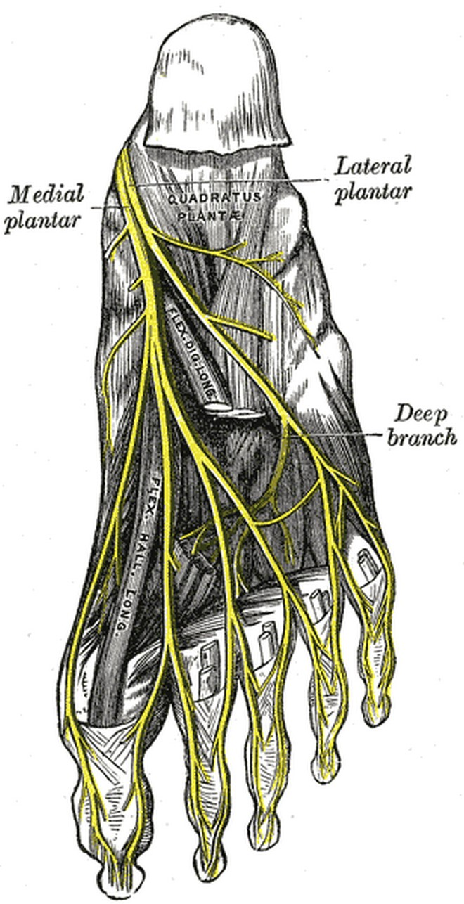 interdigital neuroma
